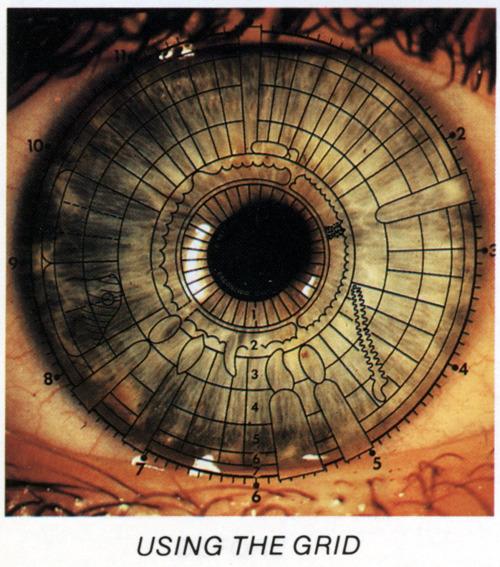 eye grid
